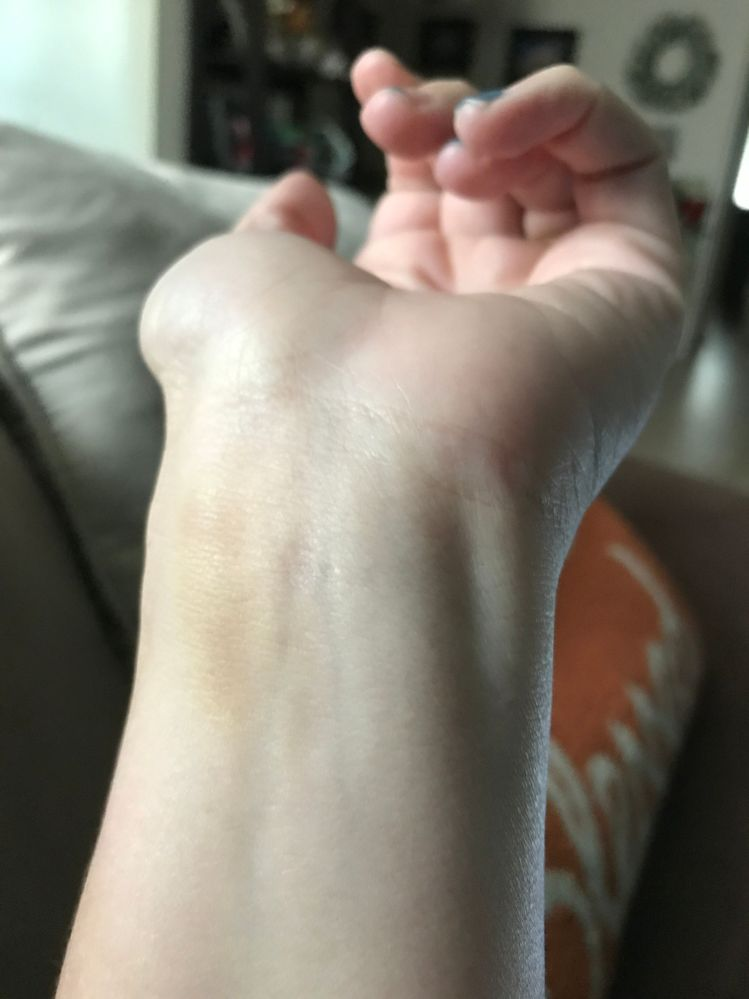 Versa wrist discomfort - Fitbit Community