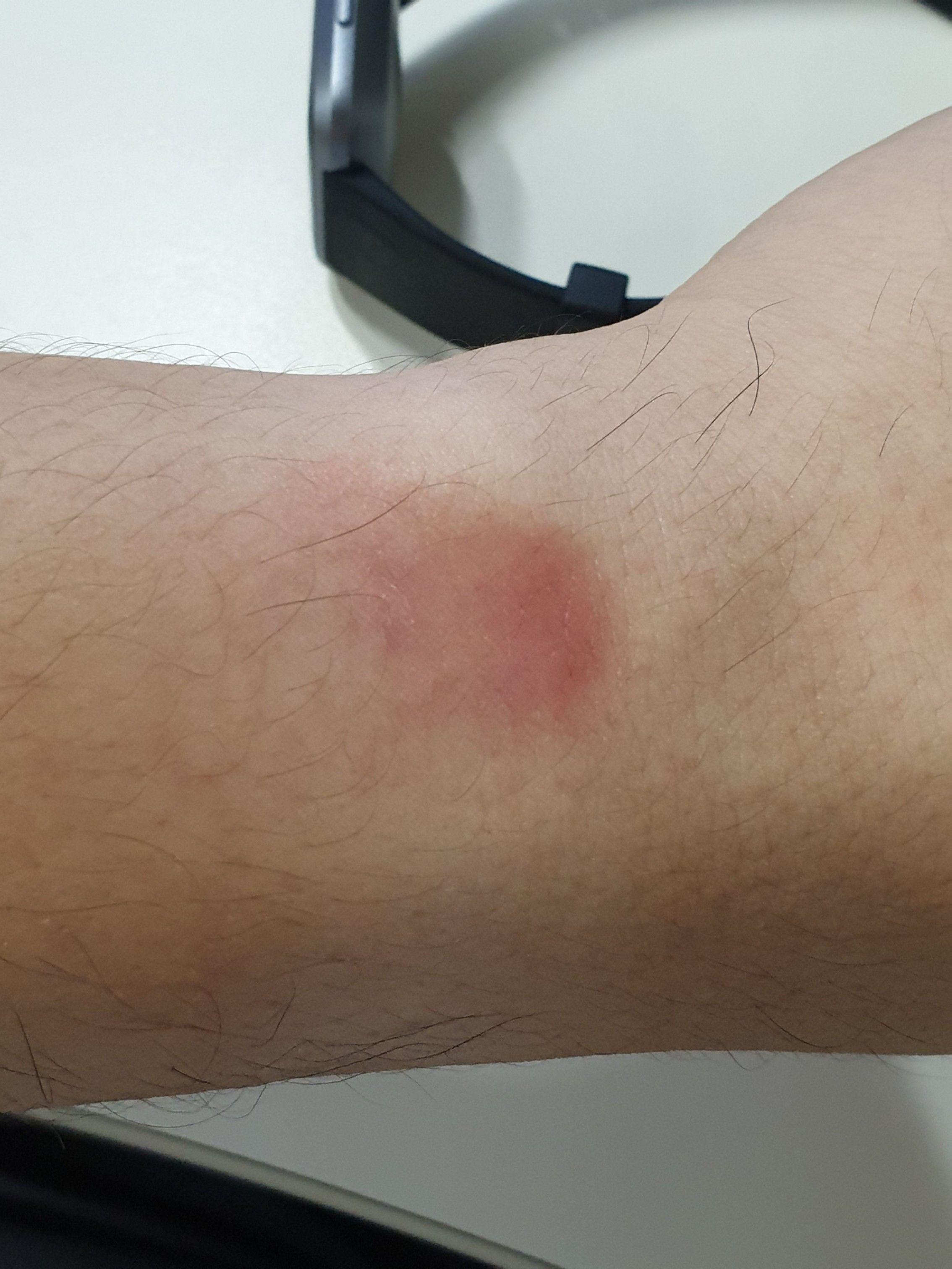 Experiencing skin discomfort, irritation or wrist