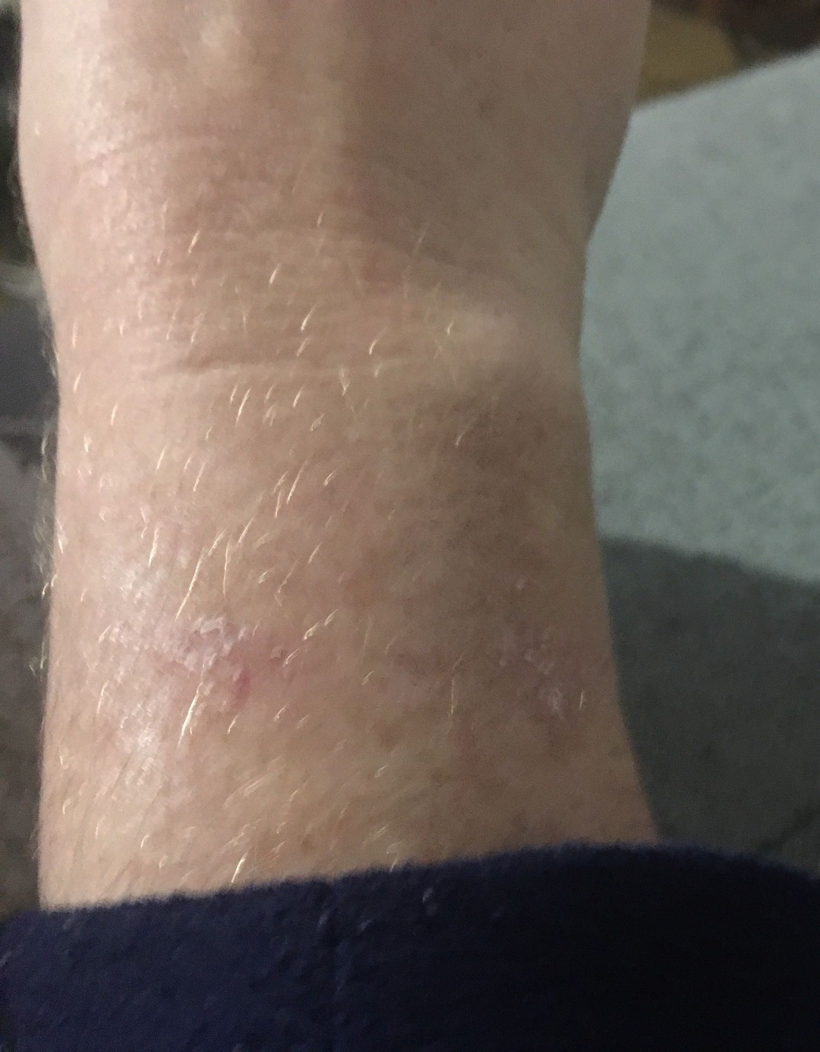 Experiencing skin discomfort, irritation or wrist/    - Page